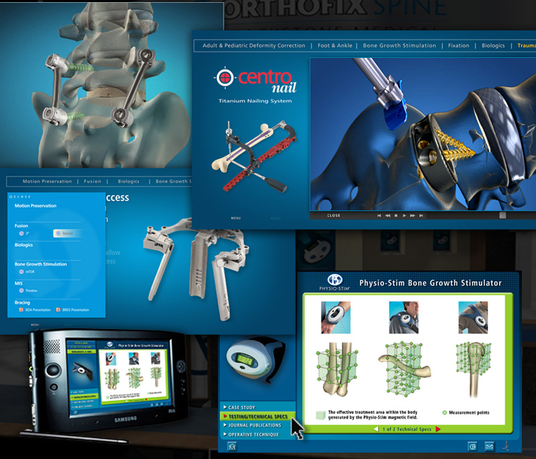 Orthofix Tradeshow Interactive Monitor Presentation Design and Development